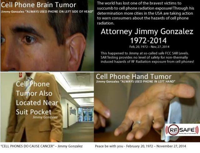 Jimmy-Gonzalez-Cell-Phone-Cancer-Brain-Cancer-Hand-Cancer-Chest-Cancer-RF-RADIATION
